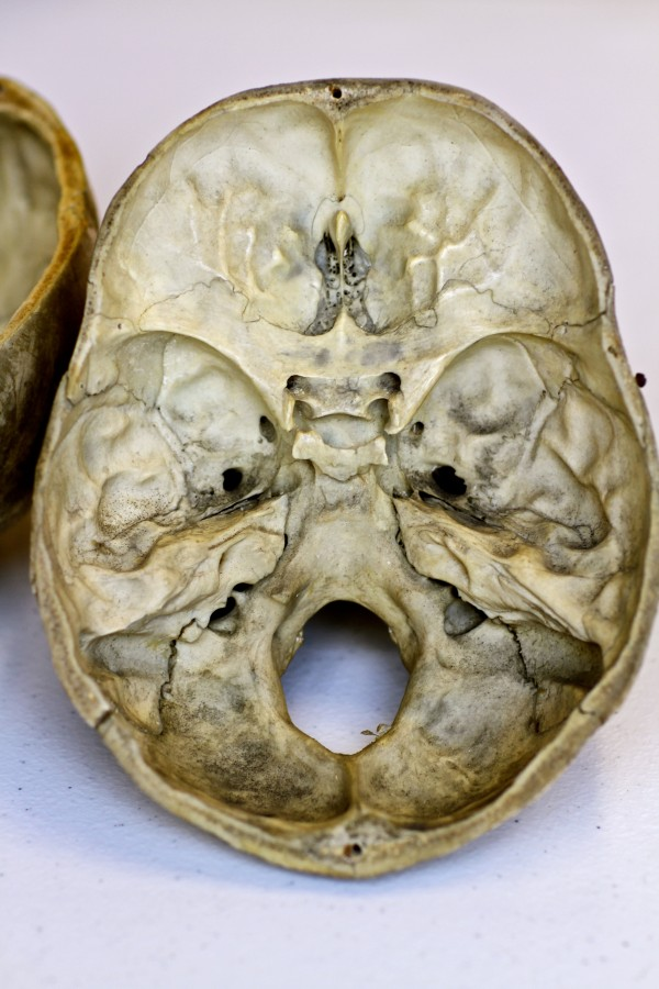 inside skull