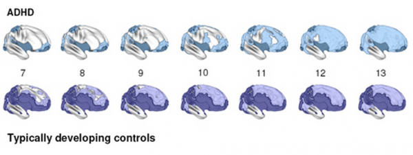 mature cortex